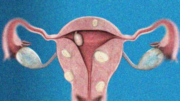 Living with uterine fibroids