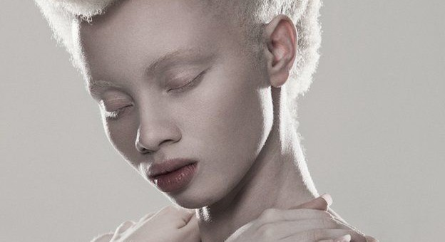 Albinism and perceptions of beauty