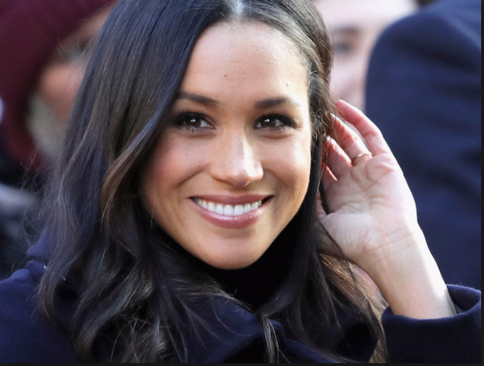 Get a smile like Meghan Markle for your big day