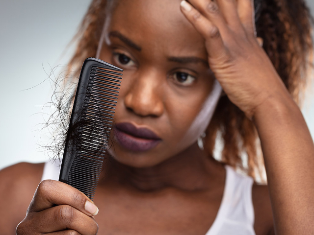Afro hair transplants– here's all you need to know
