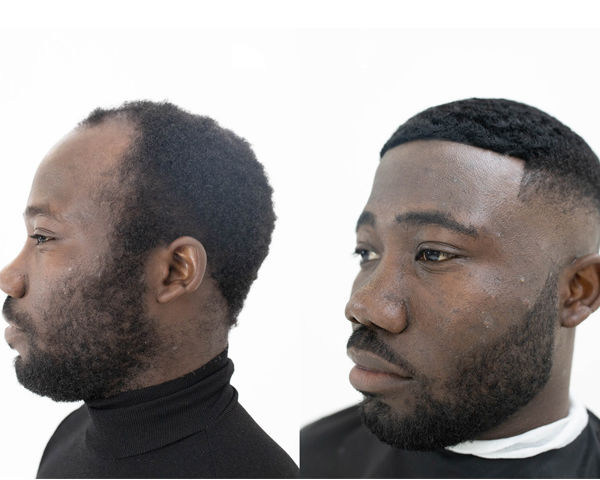 Black founders offer a unique solution for male hair loss